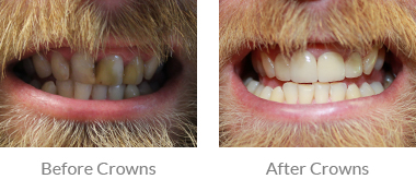 Male Crowns Before & After